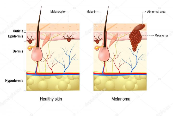 What Are Melanoma and Non-Melanocytic Skin Cancer? Should We Be Worried About It?